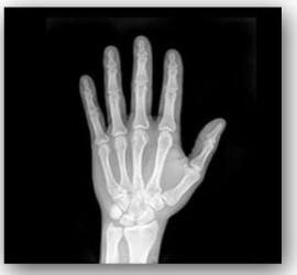 Hand X-ray shadow 2